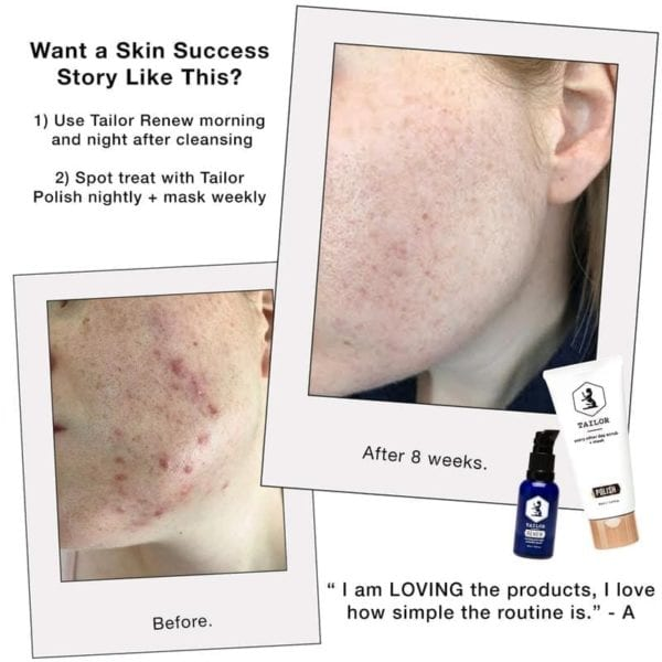 Tailor Skincare renew & polish results